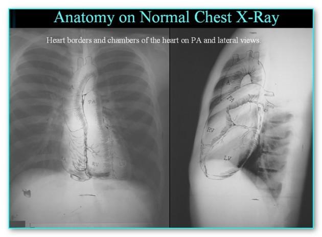 anatomychestxrayeradiology